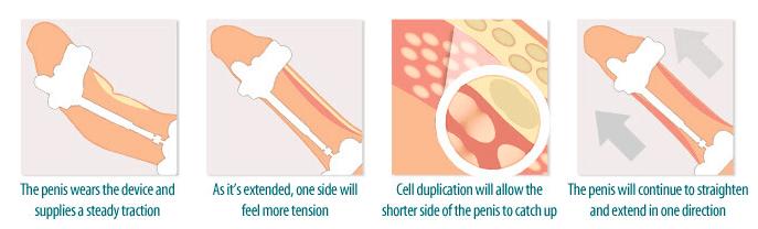 SizeGenetics Straighten Curvature Of The Penis